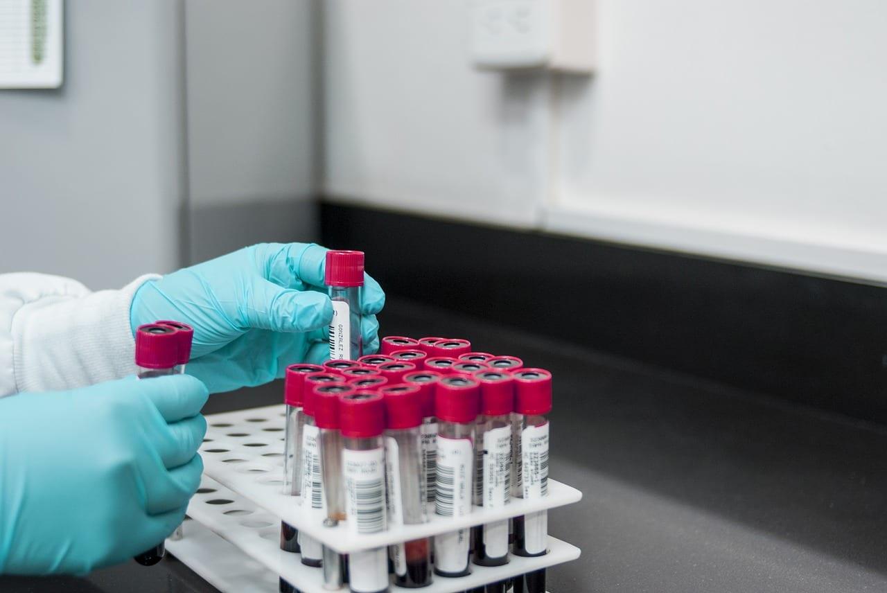 Advanced Diagnostics: Breaking Down Results